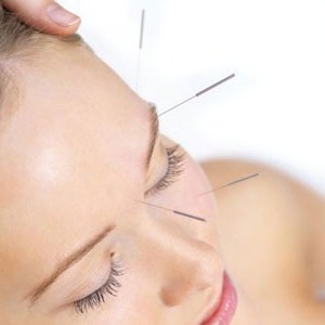 acupuncture being used for a variety of ailments